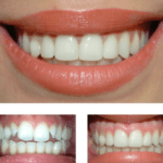Cosmetic dentist, Teeth whitening & bleching dental veneers, teeth bonding