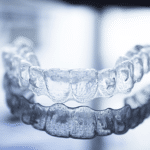 Little pearls invisalign center Bangalore