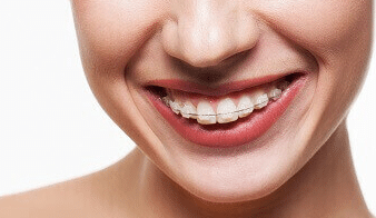 Can adults wear braces