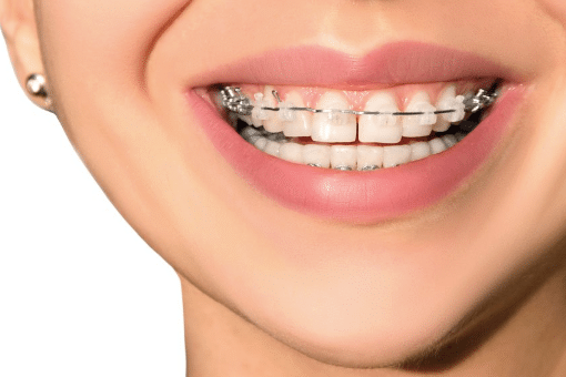 What You Need to Know About Braces and Orthodontics