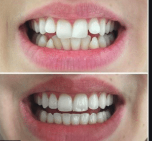 Best Invisalign Treatment in South Bangalore