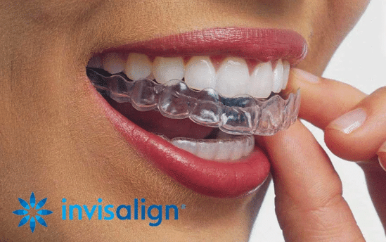 Invisalign Invisible Braces in Bangalore
