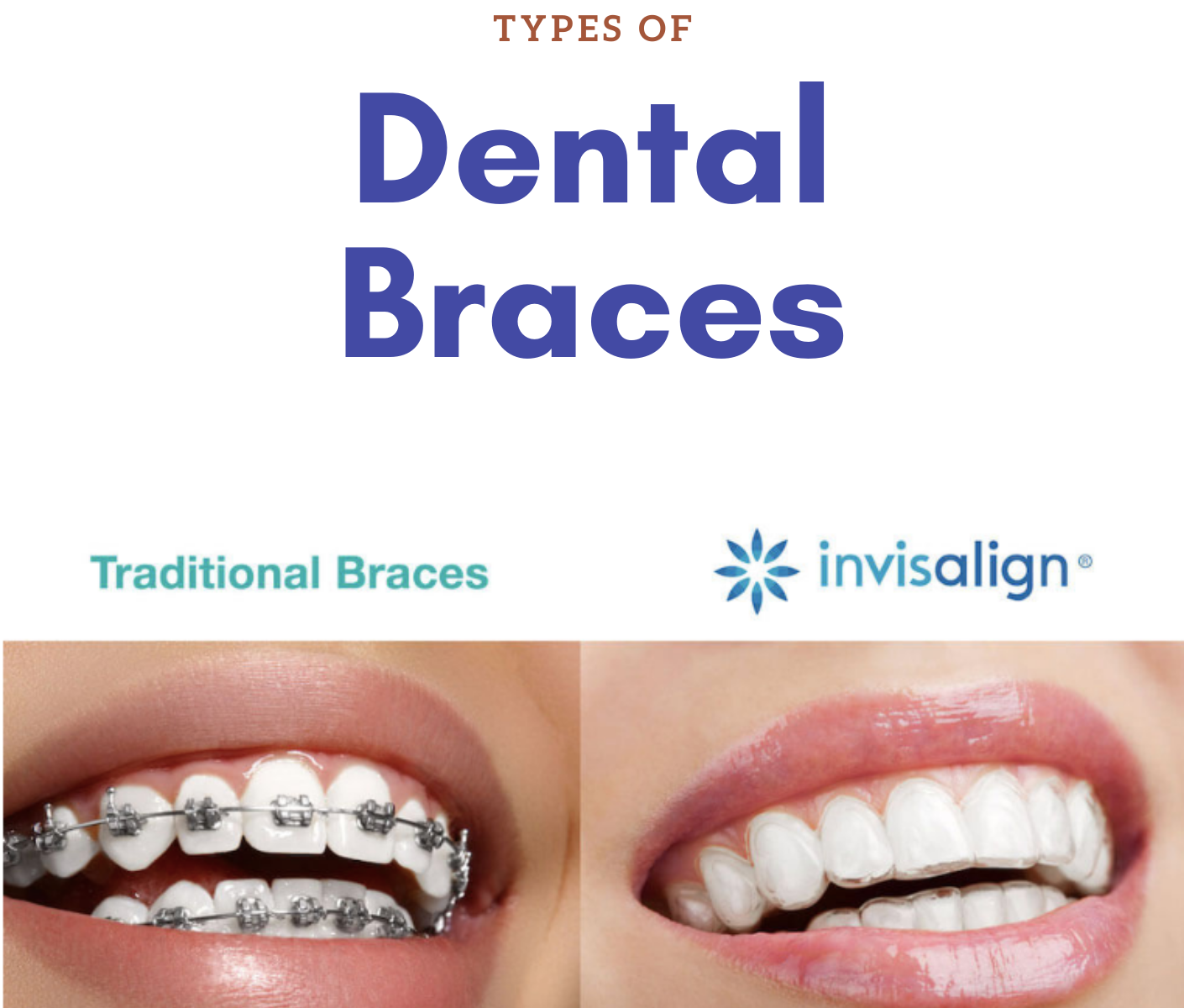 Types of dental braces